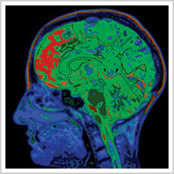Understanding Alzheimer's Disease and the Dementias: What We Know, What We Can Do